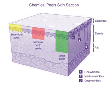 Aesthetician Chemical Peel Certification Training Class | Professional Cosmetologist School Chandler AZ
